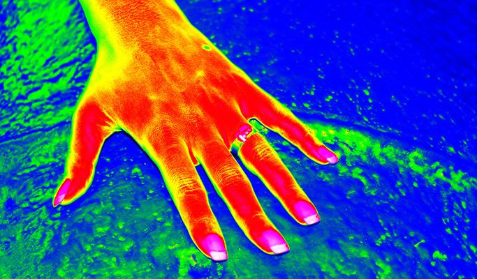 손을 적외선으로 스캔한 사진