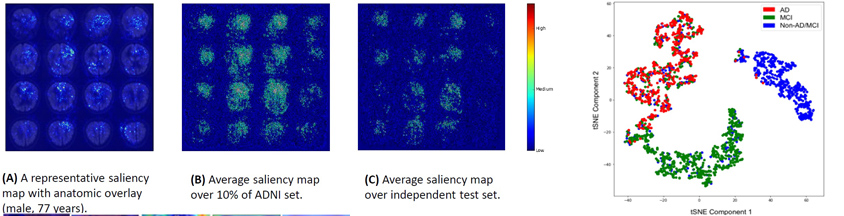 A Deep Learning Model for Early Prediction of the Diagnosis of Alzheimer Disease