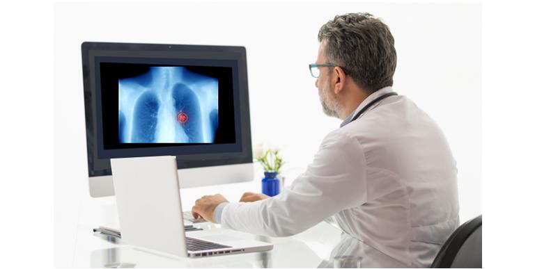인공지능을 활용하면 폐 결절을 손쉽게 찾아내 의사의 판독을 보조합니다